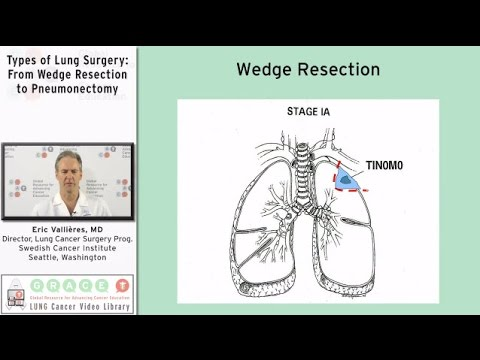 Embedded thumbnail for The Surgical Decision: Assessing and Discussing the Patient's Options